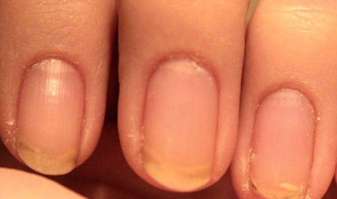 Как испортить свои ногти
